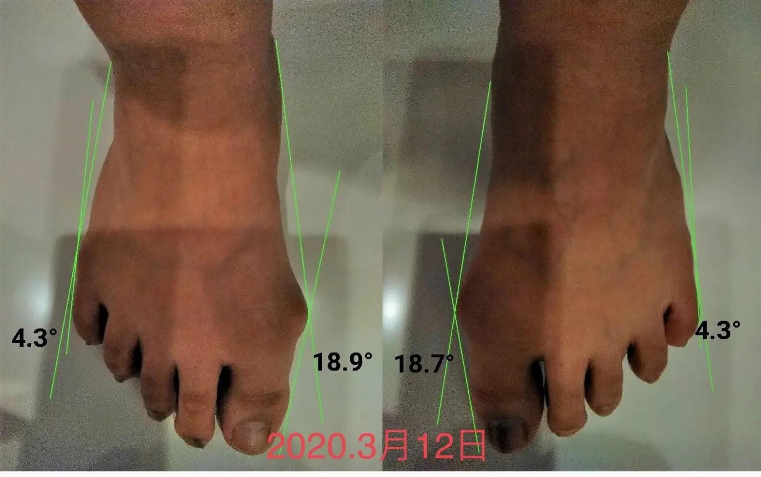半年で外反母趾が大幅に改善した河内長野の高校生の例