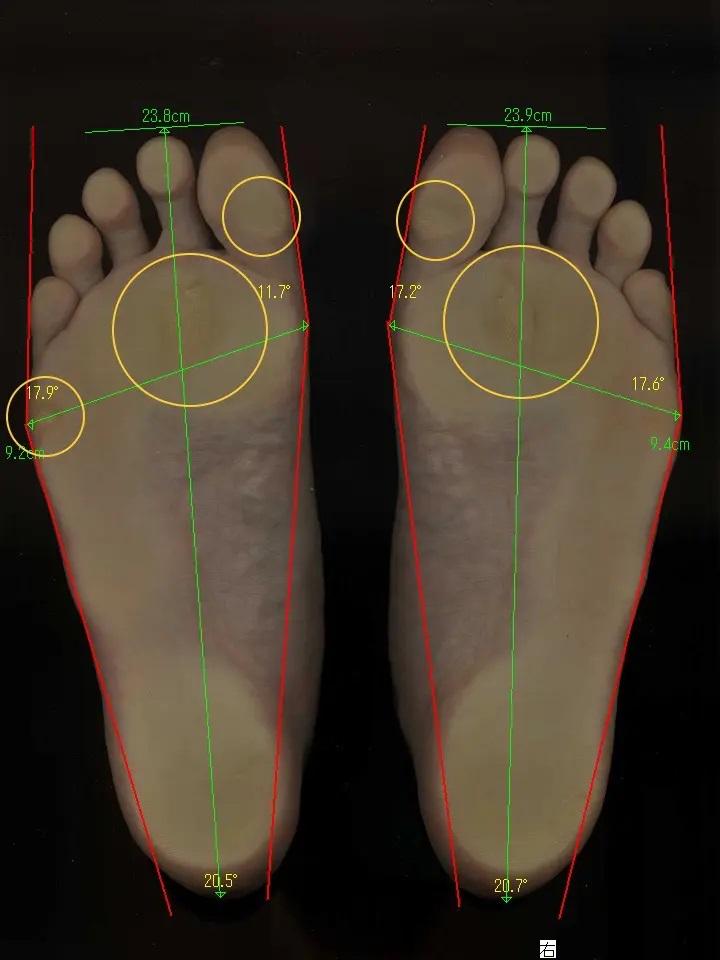 大阪狭山市で外反母趾・魚の目・タコ、坐骨神経痛・腰痛・ヘルニアでお悩みの方の足