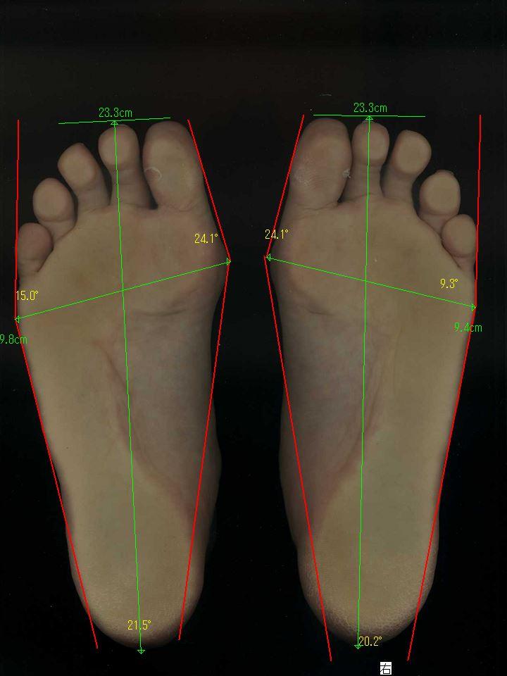 中程度の外反母趾、中足骨骨頭痛症も