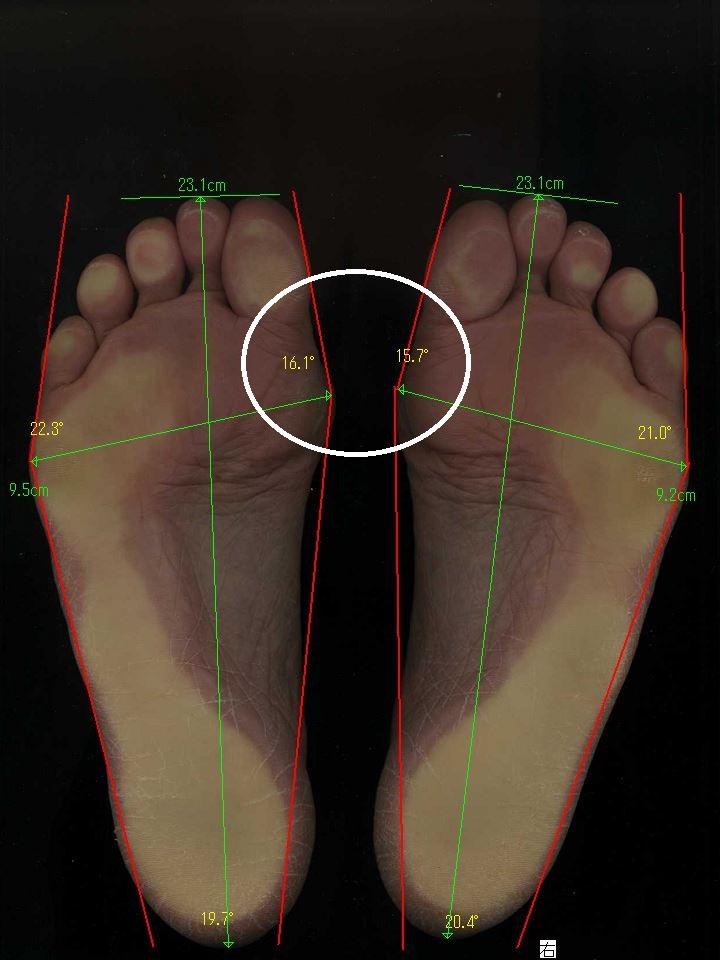 堺市から外反母趾の治療に通った50代女性の卒業時の足