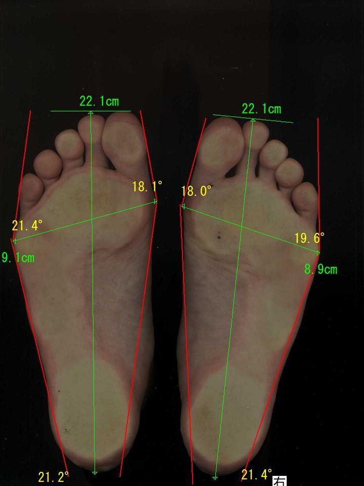 外反母趾・内反小趾、巻き爪が治った奈良県葛城市の女性の足