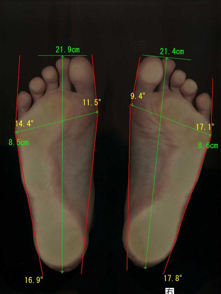 外反母趾・内反小趾、巻き爪が見事に治った奈良県葛城市の女性の足