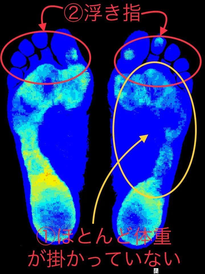 大和郡山市の40代女性の足分析結果