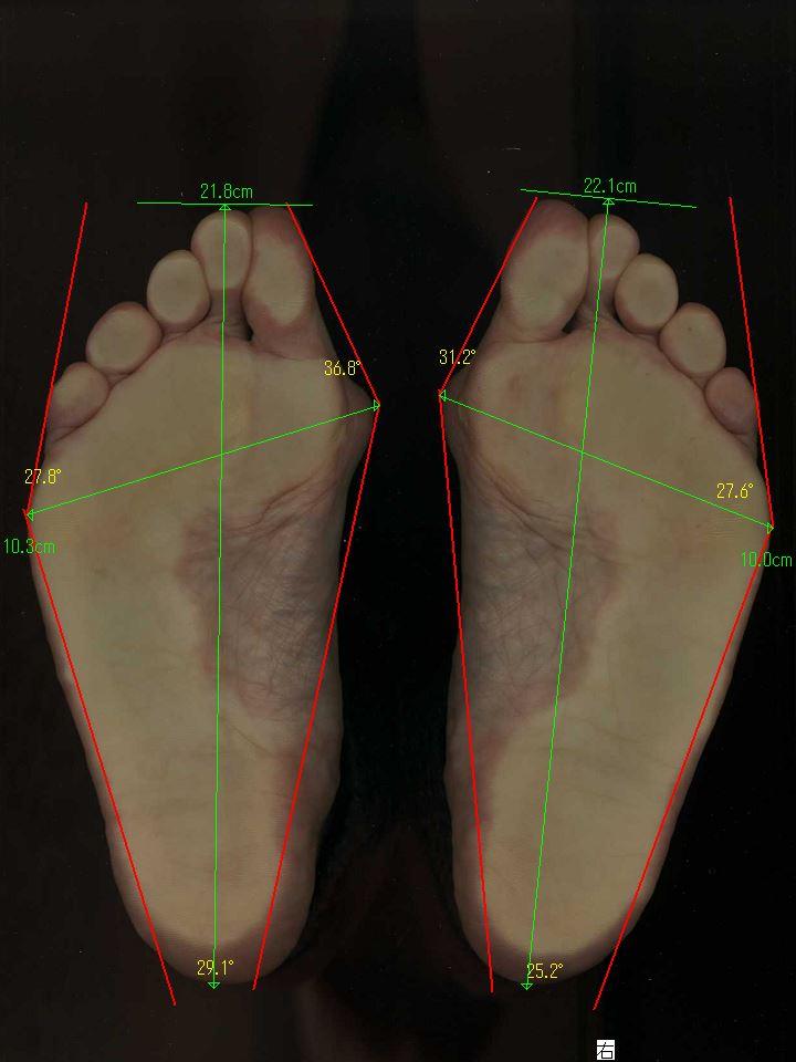 長年の外反母趾が改善した藤井寺市の60代女性の初回の足の状態
