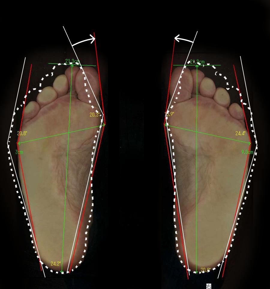 長年の外反母趾が約4ヶ月で改善した藤井寺市の60代女性の、正常な足に