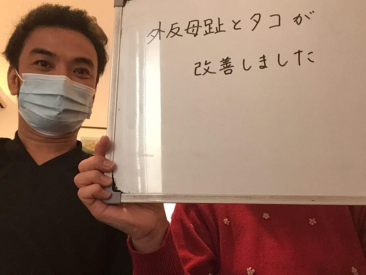 外反母趾を改善すると長年のタコ、魚の目まで無くなった富田林市の50代女性