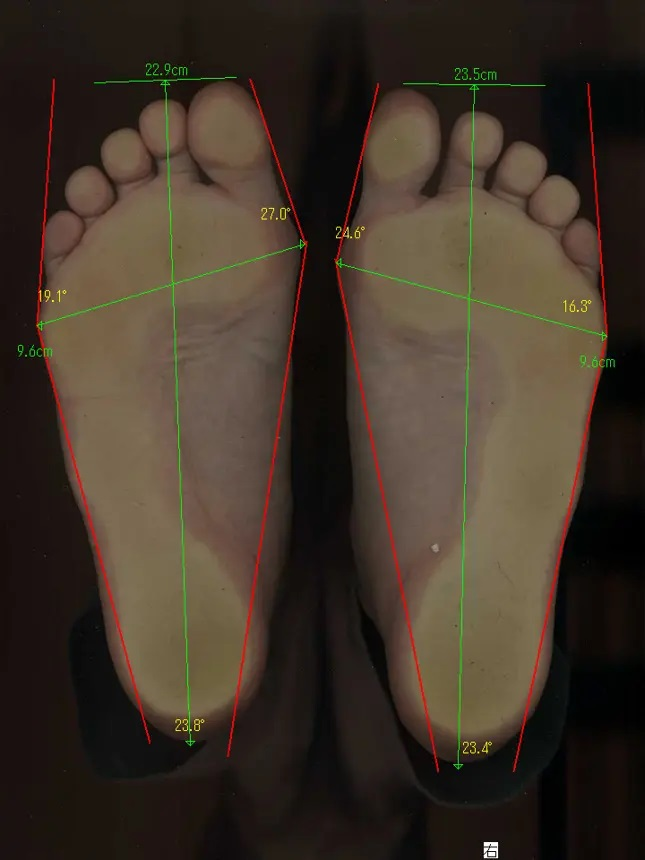 靴が原因と思っていた方の外反母趾の治療前