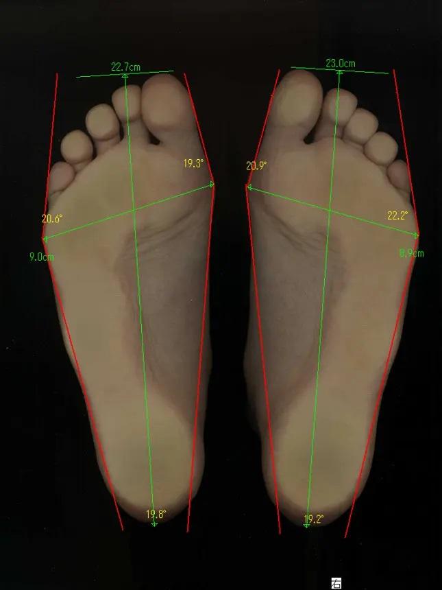 靴が原因と思っていたけれど、外反母趾が治った方