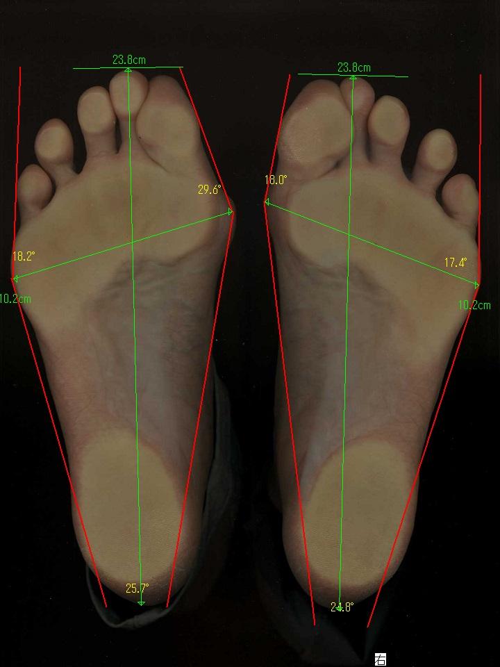 強剛母趾と外反母趾の足